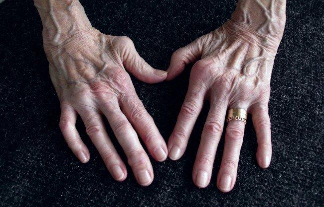 artrita cronică a articulațiilor mâinilor