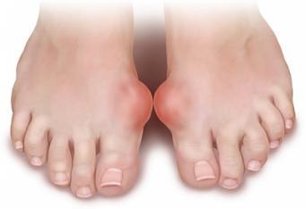artrita guta a simptomelor articulației cotului și tratament recomandări pentru tratamentul îmbolnăvirilor comune