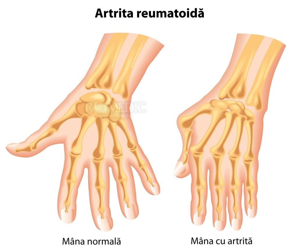 artrita oaselor brațului unguente pentru durere în articulația mâinii