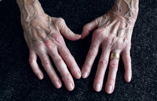Unguent pentru dureri articulare Ketan