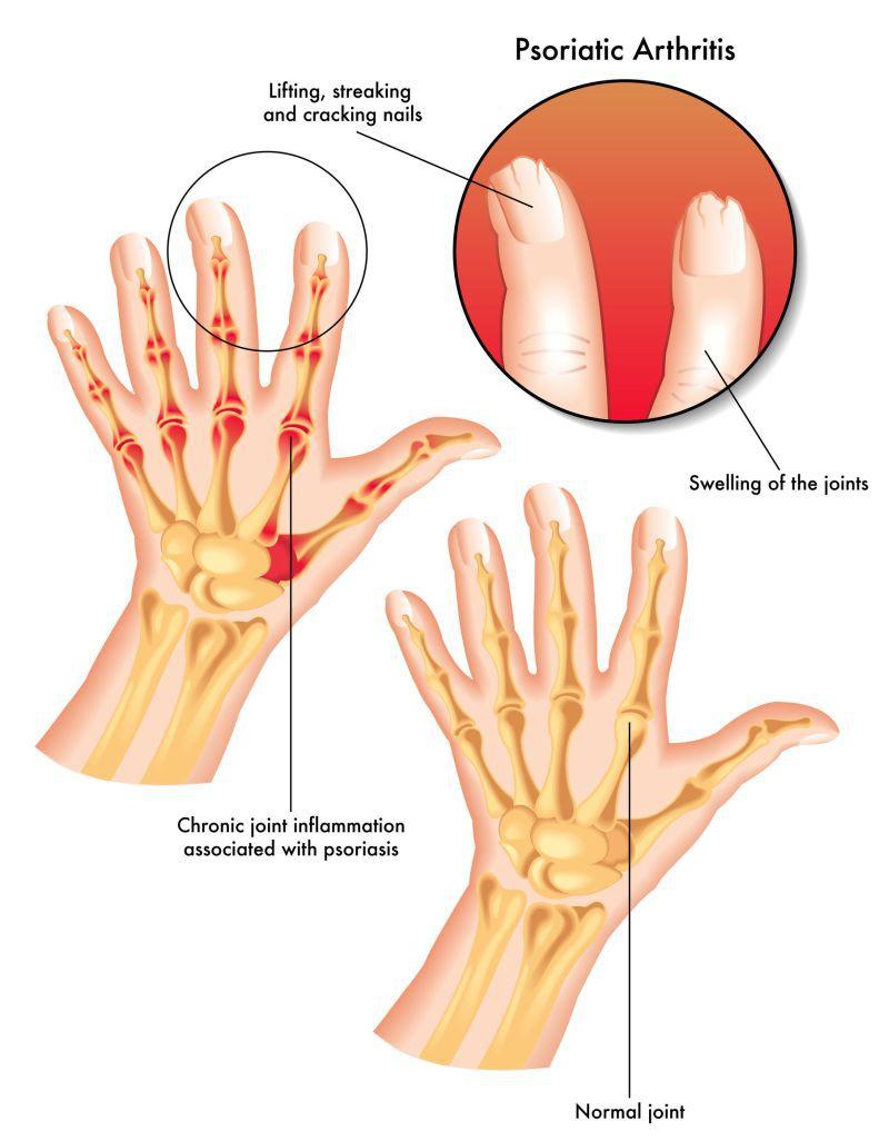 durere și amorțeală în articulația gleznei