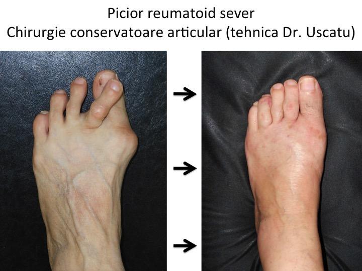 artrita reumatoidă a articulațiilor durere cu displazie de șold
