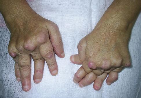 artrita reumatoidă a articulațiilor de ce durează articulația gleznei?