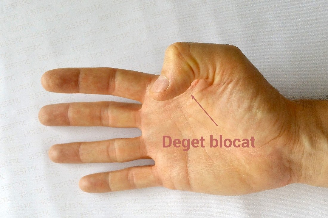 Tratament Pentru Artrita În Articulația Degetului - Guta la articulatiile degetelor de la mana