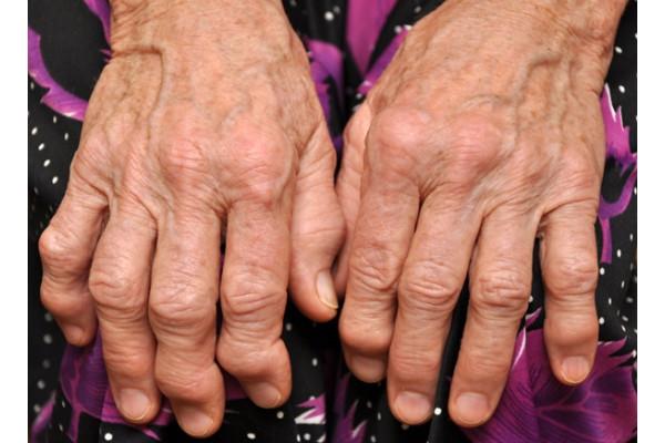 artrita reumatoidă pe degete
