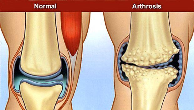 tratamentul articulațiilor degetelor de la picioare Unguent articular Solaris