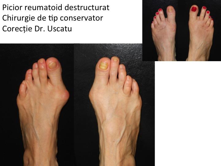 tratamentul eficient al artrozei mâinii
