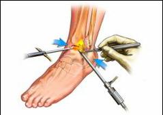artroza tratamentului injecțiilor articulației gleznei