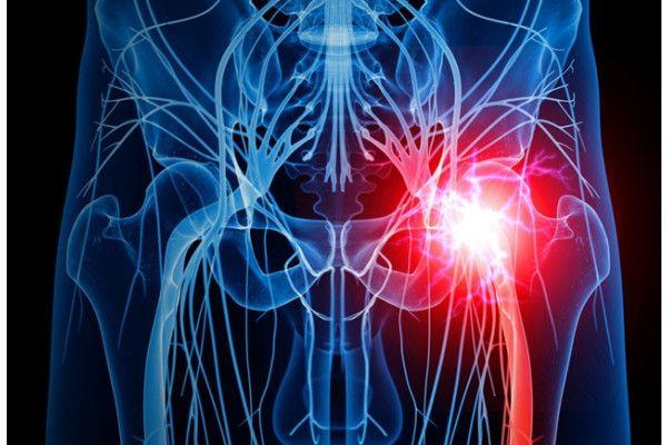 tratamentul durerii la șold