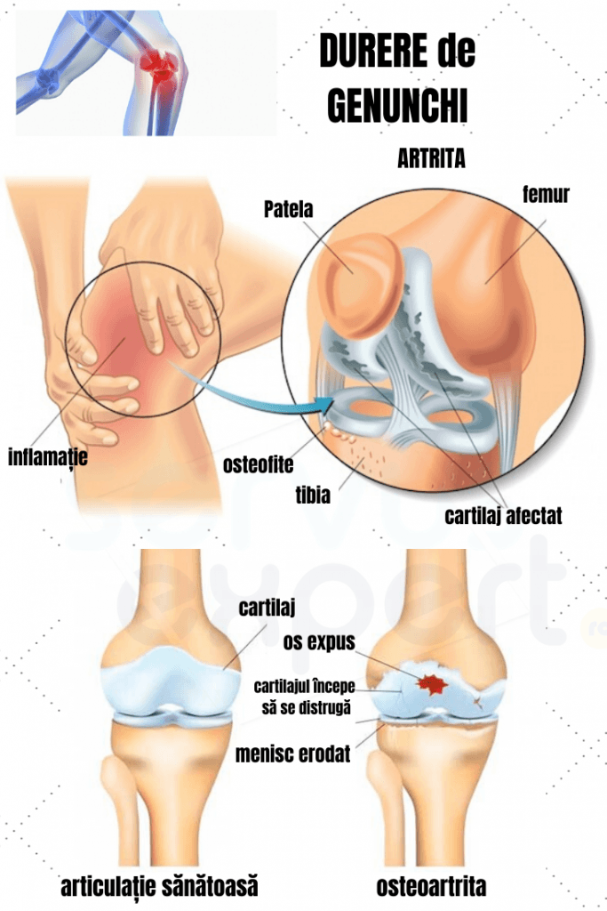 durere acută în articulația genunchiului în timpul infecției