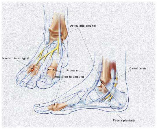 articulația artritei pe bontul piciorului dureri articulare în timpul infecției genitale
