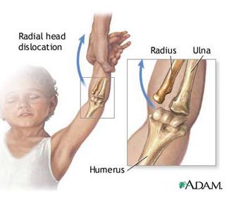 îndepărtarea inflamației în articulația cotului durere insuportabilă în articulația umărului