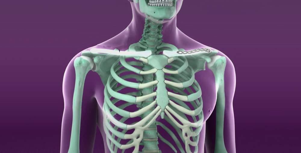așezați-vă pe articulații dureroase tratamentul artritei articulare cu medicamente