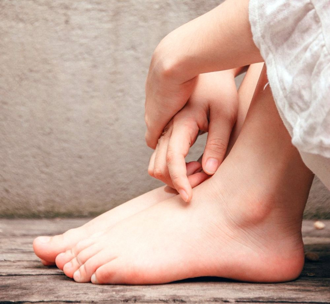 umflarea în jurul articulațiilor picioarelor