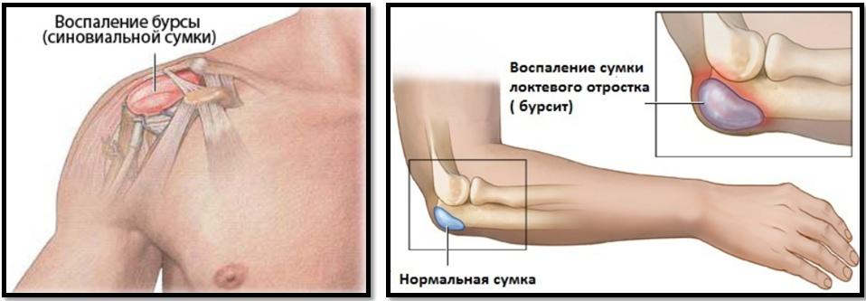 recuperare după fracturarea condilului articulației cotului boală articulară la nivelul umărului