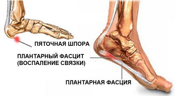 durere rătăcitoare la genunchi clasificarea difuză a bolilor țesutului conjunctiv