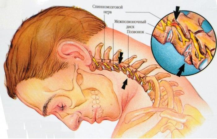 ce unguent tratează osteochondroza cervicală artroza articulației genunchiului simptomele artritei