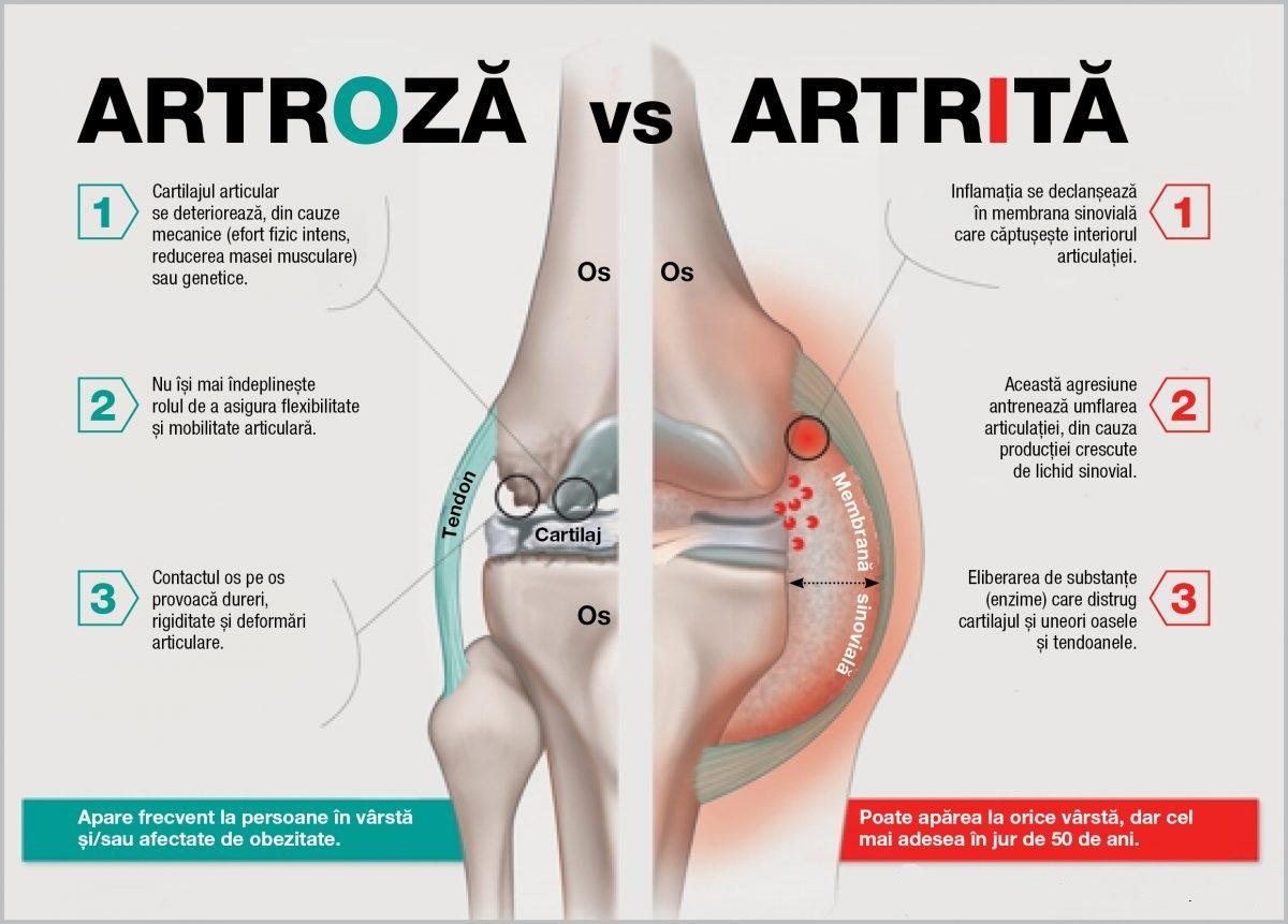 tratamentul cocsului cu artroză