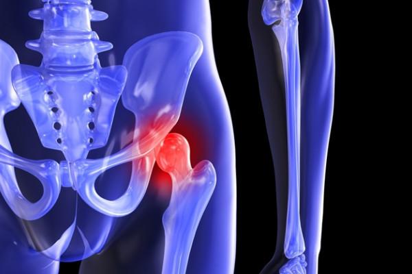 artroza traumatică a genunchiului
