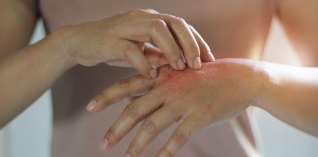 artrita cum să tratezi fără pilule unguent pentru osteochondroza a spatelui inferior