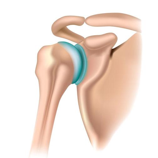Periartrita tratamentului articulației umărului stâng