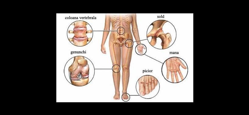 inflamația țesuturilor din jurul articulației șoldului
