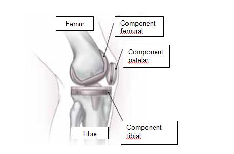 perioada de restaurare a genunchiului
