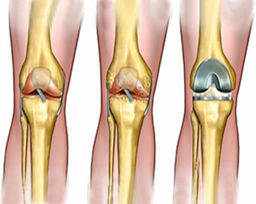 Articulații din genunchi de titan