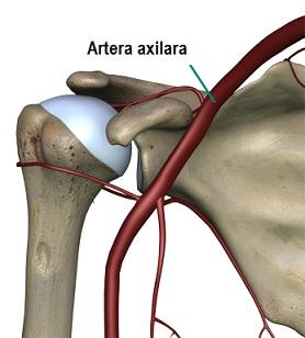 artroza a 2-a etapă a articulației umărului bursita unguentului articulației genunchiului de la al lui