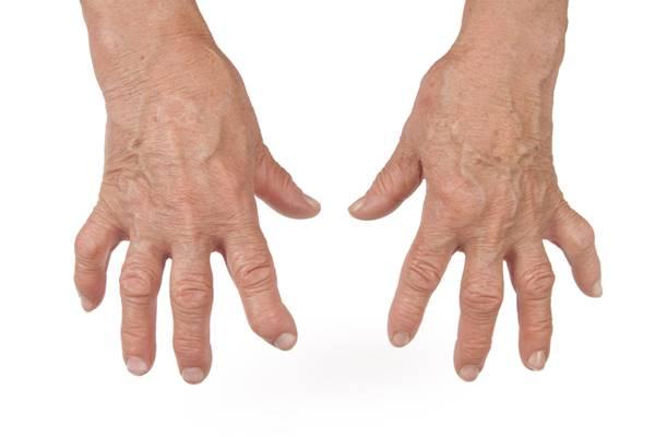 dezvoltarea articulațiilor degetelor după accidentare tratament articular al hipertermiei