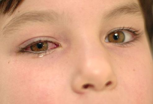 diagnostic de inflamatie a tesutului conjunctiv