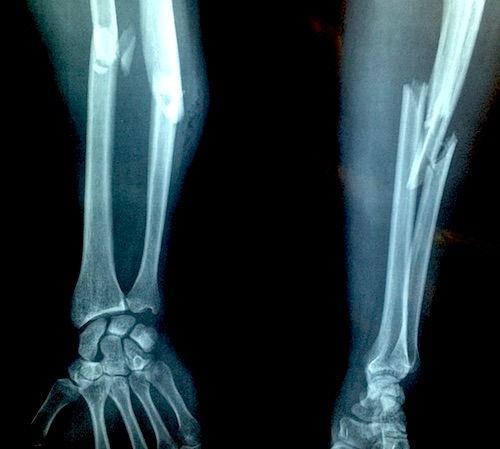 tratament de luxație a articulației genunchiului