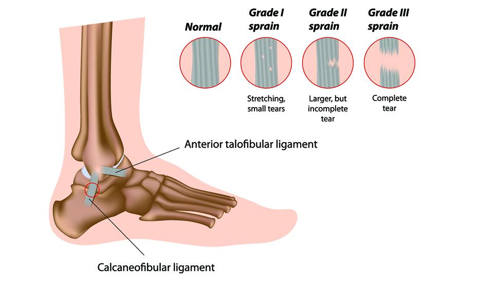 durere articulară a gleznei medicamente pentru durerile articulare musculare