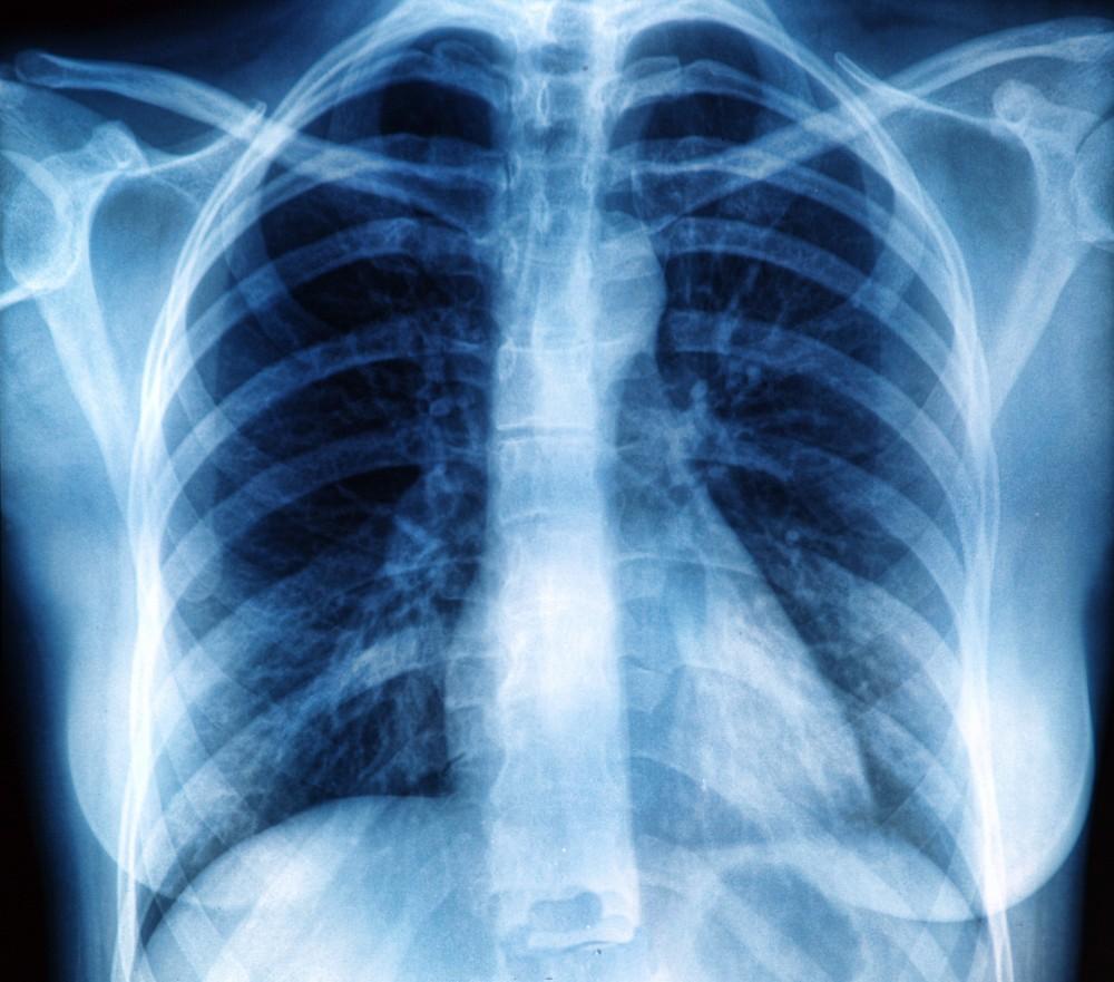 dureri articulare și musculare cu sarcoidoză