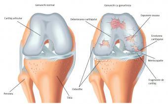 Dureri de genunchi grave de ajutor. Artroza – ce este, tratament si simptome