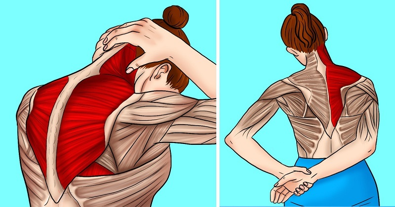 dureri de gât dureri de umăr simptomele și tratamentul artrozei fațetelor