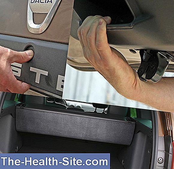 dureri la încheietura mâinii în timpul rotației cum să tratezi o vătămare articulară