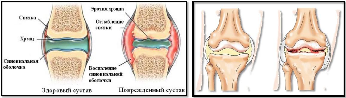 sala de sport și artroza articulației șoldului tratament articular al genunchiului