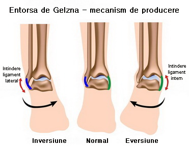 durere articulară a gleznei artroza gradului 2 al articulațiilor interfalangiene
