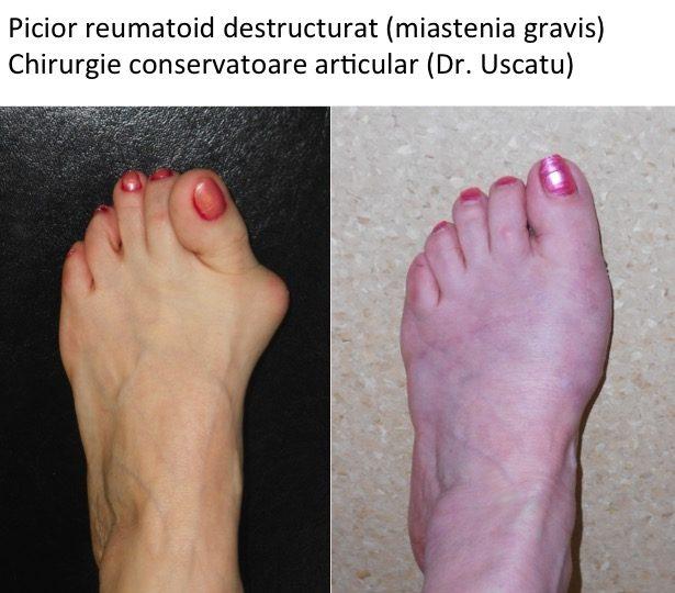 Poliartrita Reumatoida: Simptome • Poze • Analize • Tratament - fotolii-canapele.ro