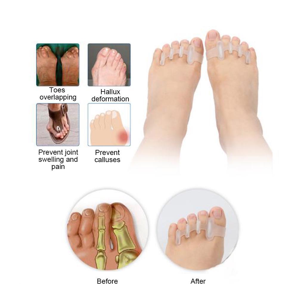 cornuri pe articulațiile degetelor de la picioare