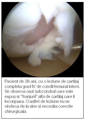 tratamentul cartilajului în articulații tratamentul articulațiilor cu degetul mic