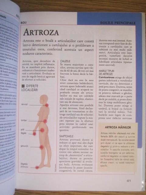 Enciclopedie medicală a bolilor articulare - Pregătirile comune ale clubului de corali