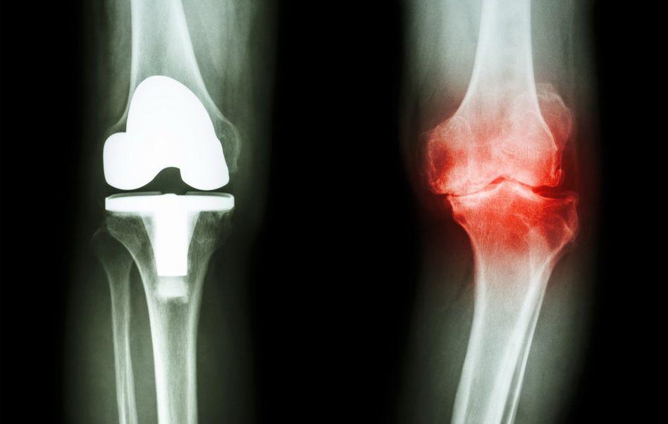 este util mersul pentru artroza genunchiului artrita articulației umărului 1 grad