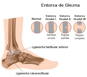 lipsa de dureri articulare de exercițiu prețul de condroitină glucozamină