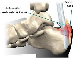 inflamația piciorului articulației