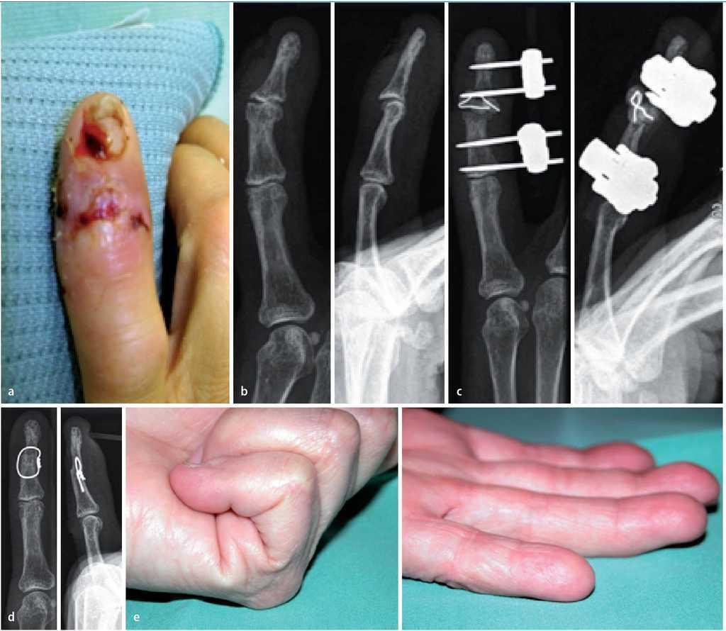 artroza genunchiului tratament de 1 grad artroza care deformează tratamentul mâinilor