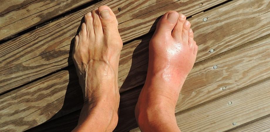 nevralgia genunchiului cum să tratezi