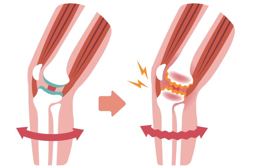 modificarea formei articulației genunchiului artrita deget