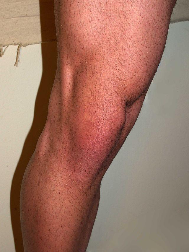 Tratamentul cu artroză Movasin ameliorați inflamația articulară în artrită